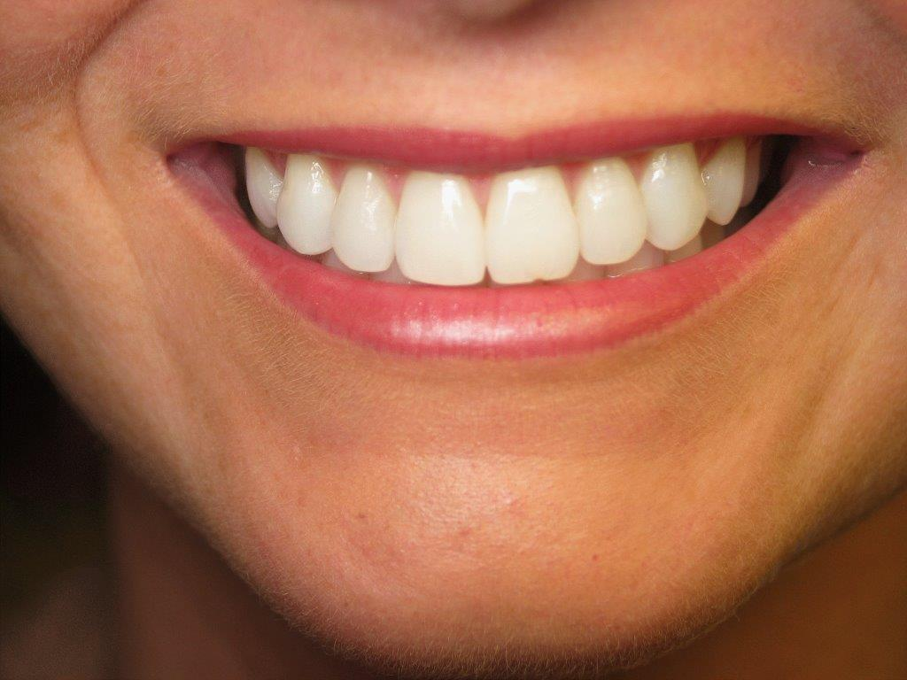 Teeth Whitening Jonesboro AR