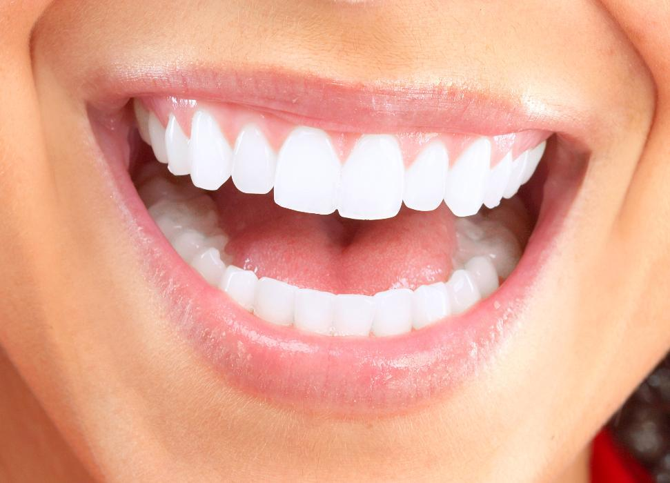 Bright Smile | Teeth Whitening Jonesboro AR
