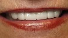 Cosmetic Dentist Photo | Jonesboro AR Dentist