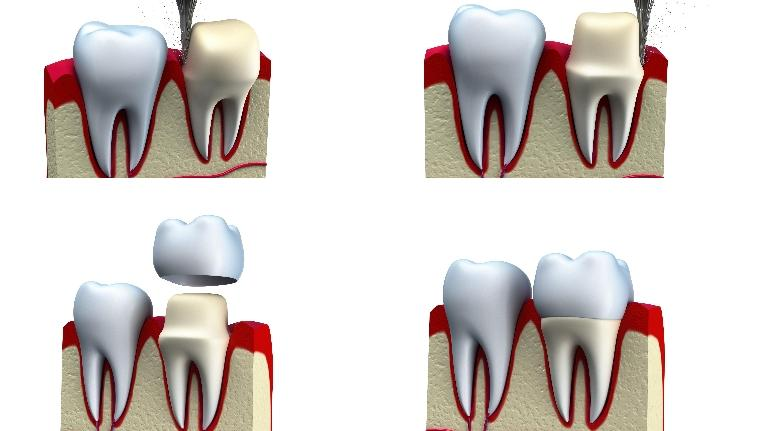 Crowns & Veneers in Jonesboro AR, Dr. Anthon Bartels, DDS