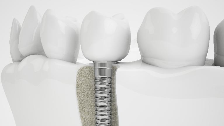 Dental Implants in Jonesboro AR, Dr. Anthony Bartels, DDS