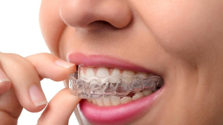 invisalign dentist in jonesbor ar