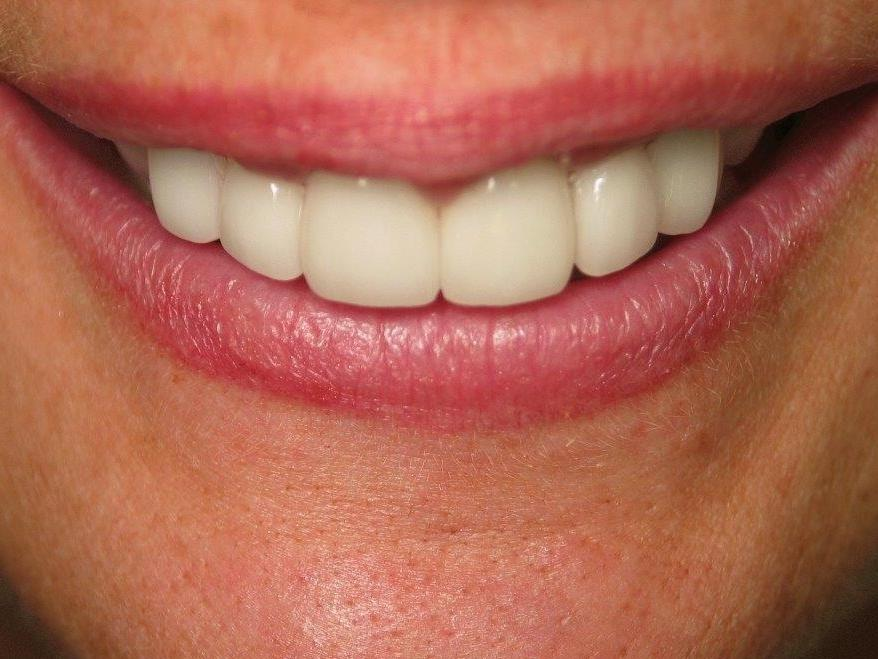 patient after veneers | jonesboro ar