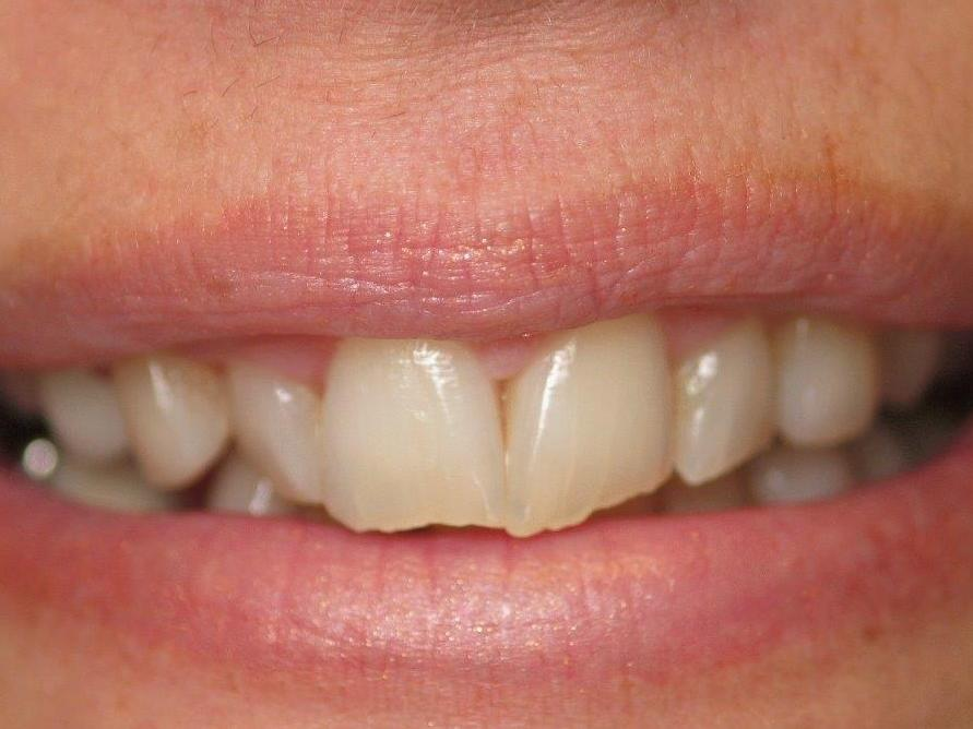 Patient before veneers | jonesboro ar