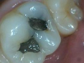Patient before tooth colored filling | jonesboro ar
