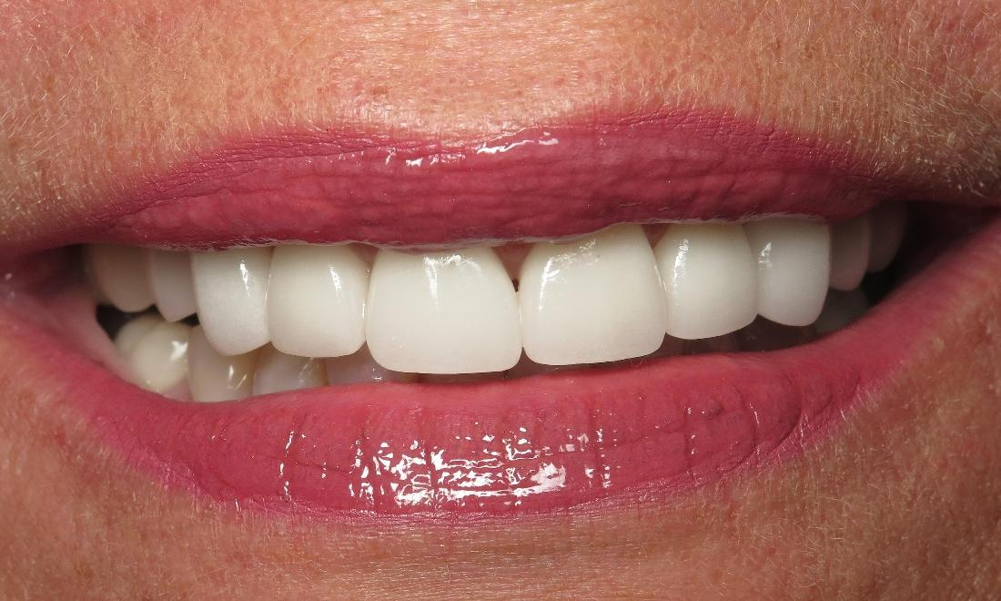 Dental Crowns Results Jonesboro AR
