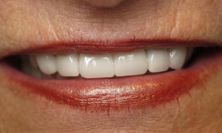 patient with new teeth   jonesboro ar dentist