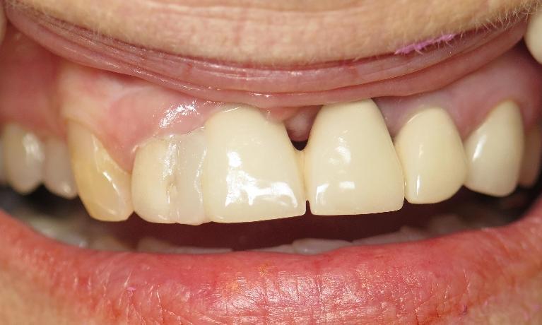 cosmetic dentistry before   Jonesboro ar